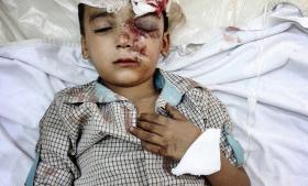 Bahaa er fem år gammel. Han er blevet såret under Assad-styrkernes angreb på Kafranjed, tæt på Ariha. Han har blandt andet fået hjernerystelse og kraniebrud og øjenskader.