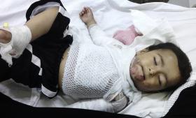 Når der skrives om Syrien, handler det ofte kun om, hvor mange døde der er. Men antallet af amputerede lemmer, livsvarige handicap og psykiske lidelser er tårnhøjt her
