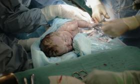 Det er ikke muligt at give en formel for hvilken fødselsmåde, der er den bedste for den enkelte kvinde. Det er vigtigt at informere på individuelt niveau, og derfor giver det ikke meget mening at bruge generelle retningslinjer for valg af fødselsmåde, mener overlæge på Rigshospitalets fødeafdeling Jens Langhoff-Roos.