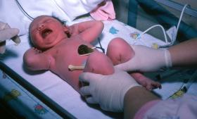 En stor rapport, som blandt andre overlæge Lone Krebs har udarbejdet for Sundhedsstyrelsen i 2005, viser, at to ud af 1.000 af de børn, der er født ved planlagt kejsersnit, har en lav Apgar-score, mens det samme gælder for fem ud af 1.000 af de børn, der er født ved en planlagt vaginal fødsel – dvs. inklusive kopforløsning og akutte kejsersnit.