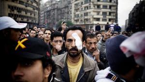 Trods knubs fra gårsdagens protester mødte denne egypter frem til nye demonstrationer mod præsident Mubarak. Over 100 rapporteres dræbt under demonstrationerne. Foto: Eduardo Castaldo