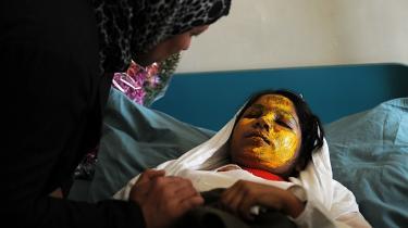 En afghansk kvinde taler med Shamisa på 17 år, der ligger og hviler sig på et hospital i Kabul efter et syreangreb. Overfaldsmænd benyttede vandpistoler til at sprøjte syre på en flok piger på vej til skole i Afghanistans sydlige by Kandahar. 12 piger blev såret, hvoraf tre af dem kom alvorligt til skade.