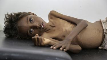 FemårigeMohannad Ali ligger på en hospitalsseng i kystbyen Abs i Yemen. Lige omkring solopgang fårMohannad Ali at vide, at hans 19-årige søster er død. Hans lillebror lever endnu. De er blandt de mange yemenitter, der er blevet ramt af hungersnød i landets borgerkrig. Billedet er fra december 2016. (Arkivfoto.)