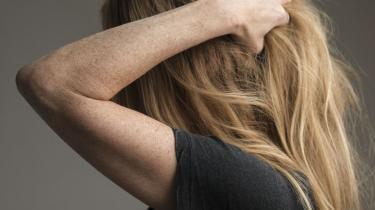 Med kølehættebehandling vil flere opleve at kunne beholde deres hår efter kemobehandling.