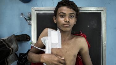 Drengen på billedet hedder Akram og er 15 år gammel. Han ligger på en briks på felthospitalet nær Hodeidah. Byen har været skueplads for nogle af de hårdeste kampe i Yemen. Akram er blevet ramt i skulderen af fragmenter fra en granat. Den uafhængige organisation Armed Conflict Location and Event Data Project vurderer, at op mod 80.000 mennesker er blevet dræbt som direkte følge af kamphandlinger i Yemen.