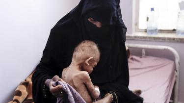 Hvert tiende minut dør et barn under fem år af underernæring, og mange får fysiske og psykiske følgevirkninger grundet sult.