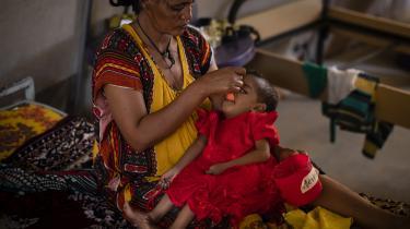 Hungersnøden i den nordlige del af Etiopien er den værste, verden har set i et årti. Her får en toårig fejlernæret pige hjælp i en lokal sundhedsklinik.