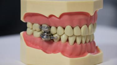 Det er svært at indtage fast føde med denne nye opfindelse. Også lidt svært at børste tænder og grine.