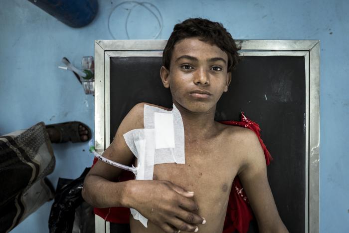 09c33e34 Drengen på billedet hedder Akram og er 15 år gammel. Han ligger på en briks