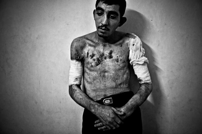Den 23-årige jordanske Ibrahim blev brutalt tortureret under fangenskab i Irak. Benzin blev hældt ud over hans krop og antændt, og han blev boret i arme og bryst med en boremaskine. Under torturen gik han i koma, og de irakiske militsfolk troede han var død og dumpede ham i vejkanten. Nogen fandt ham og kørte ham på hospitalet.