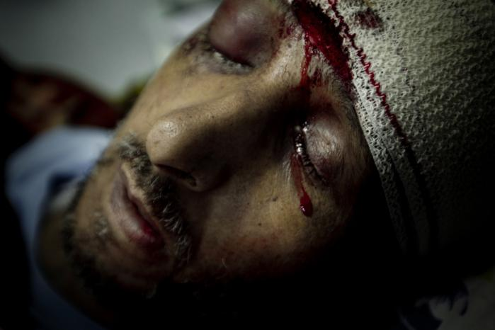 Mads Nissens billede af den sårede Hassan på et hospital i Libyen.