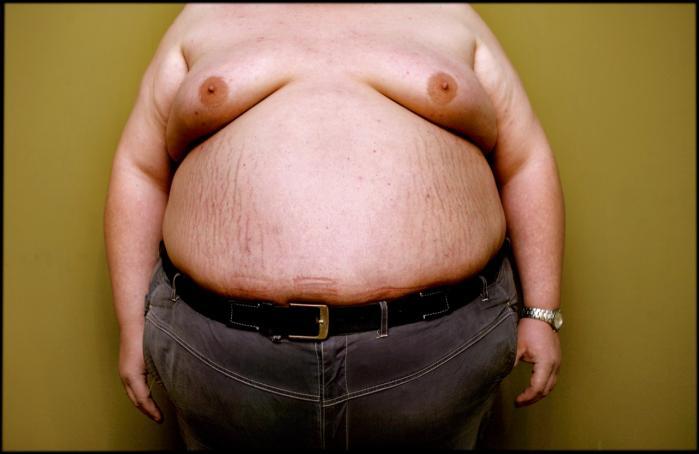 Meget store mennesker bliver stigmatiseret i medierne, der blander forskellige typer fedme sammen og ignorerer, at langtfra al fedme er til at komme af med, og at heller ikke al fedme nødvendigvis er usund.