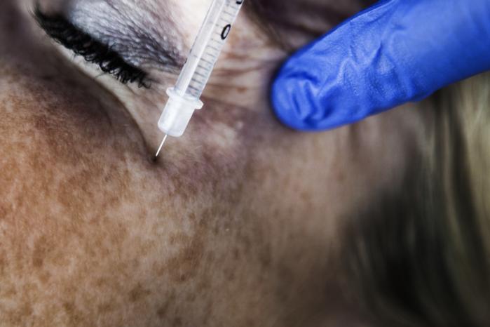 Klar, parat ... Du må godt bande, siger Poul Harboe, inden han påbegynder sin serie af nålestik omkring øjnene. Poul Harbo er læge på Kysthospitalet i Skodsborg og anslår, at der i år i Danmark vil blive foretaget 10.000 Botox-behandlinger.
